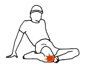 Hiperflexión rodilla